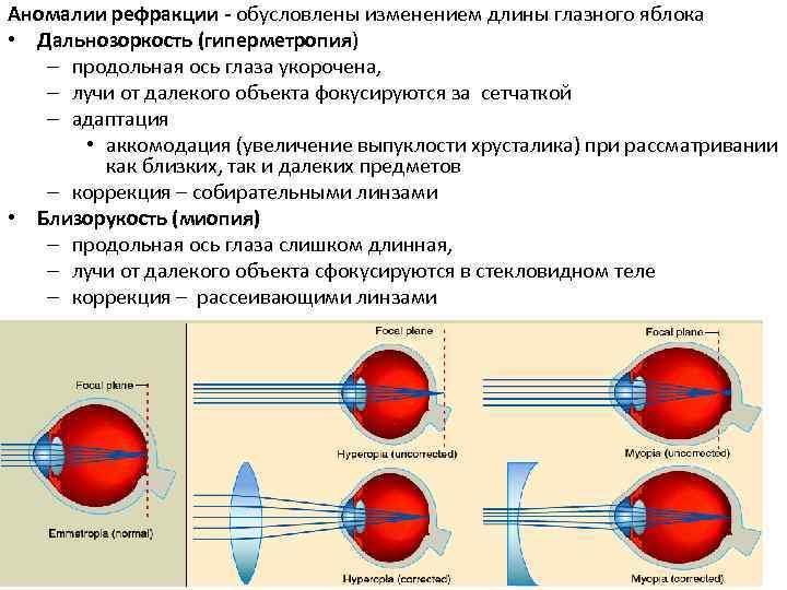 Хирургические методы коррекции аномалий рефракции