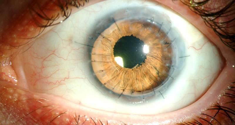 Кератит краевой глаза - причины и лечение патологии