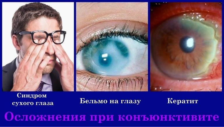 Способы лечения синдрома сухого глаза народными средствами