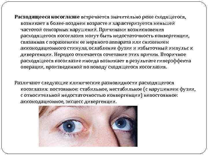 Расходящееся косоглазие у детей и взрослых: причины, виды экзотропии, лечение без операции, хирургические методы коррекции