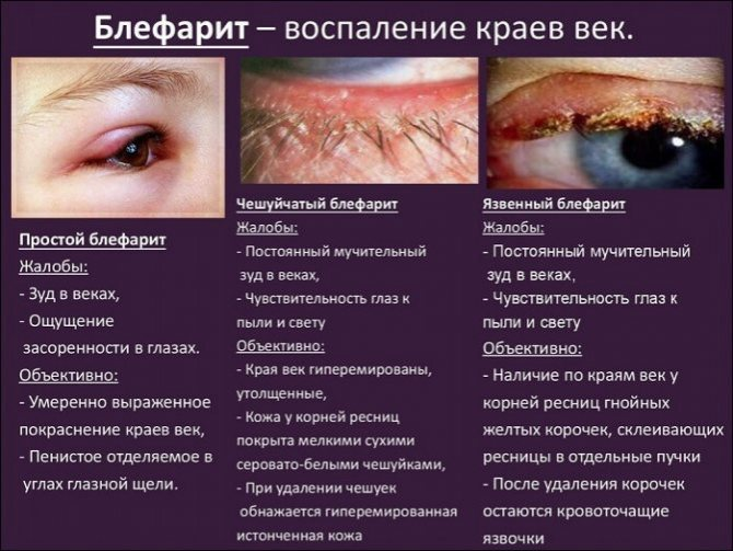 Мазь для глаз от воспаления век - список лучших