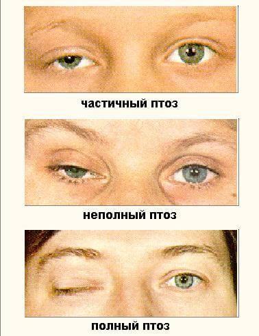 Что такое блефароспазм: причины, симптомы, лечение