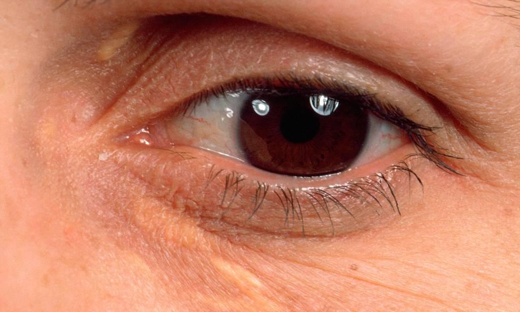 Причины появления и методы удаления желтых пятен на веках глаз