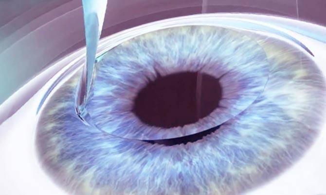 """Кератопластика: как проходит операция - """"здоровое око"""""""