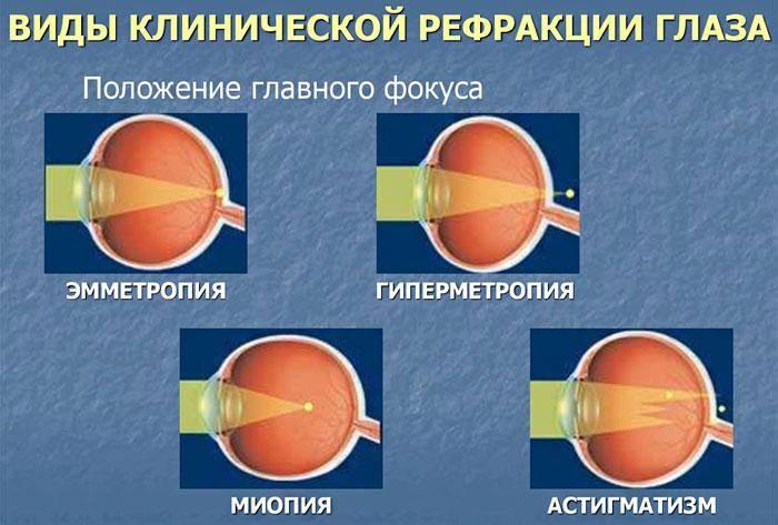 У грудничка гиперметропия | глазной.ру