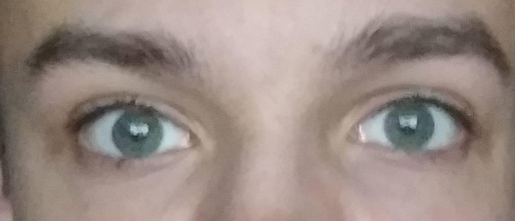 Искажение зрения в одном глазу