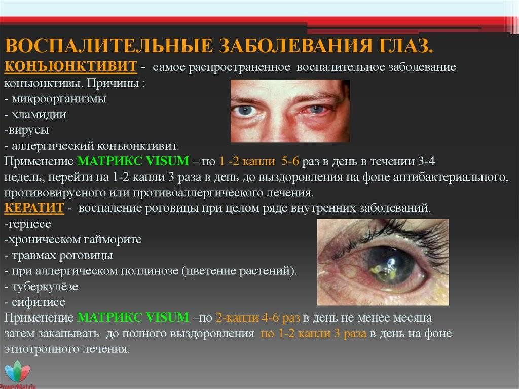 Болезни глаз у человека: список заболеваний, симптомы, лечение, причины, названия, фото