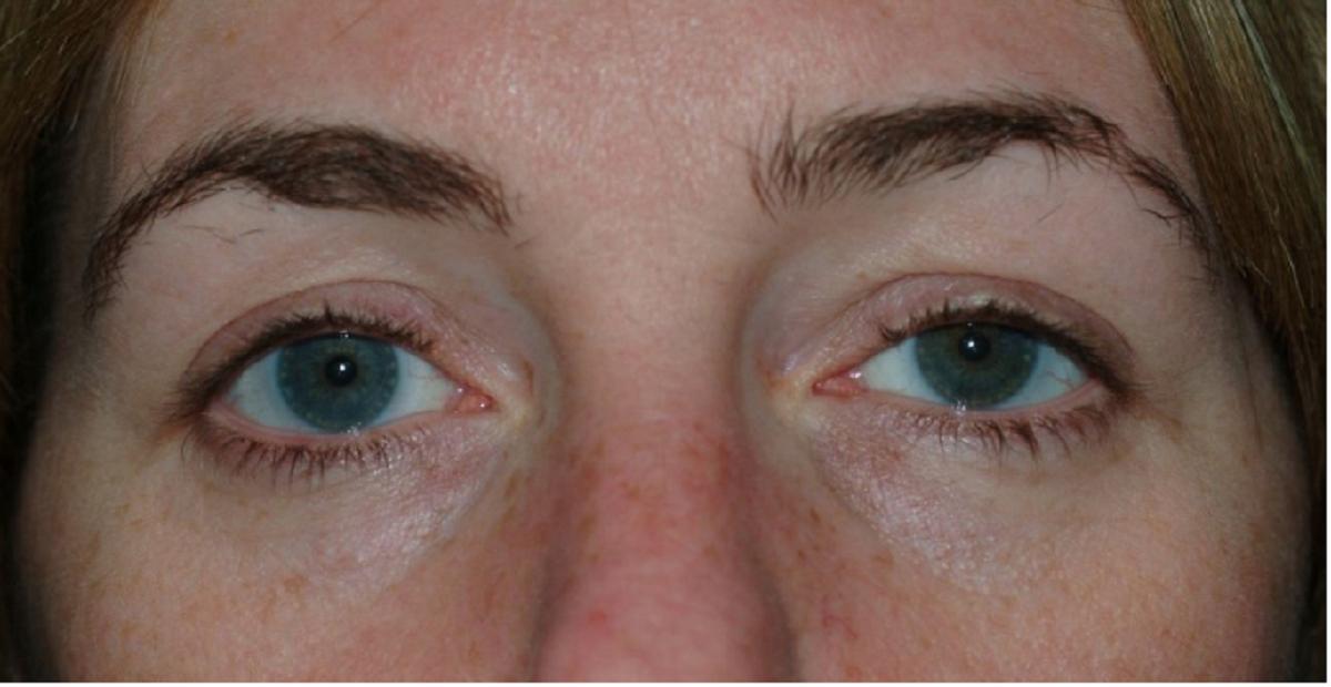 Сухость глаз при ношении контактных линз: почему постоянно сохнет роговица и что делать, если сушит даже после профилактики?