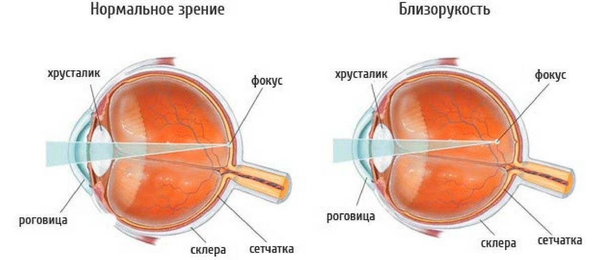 """Какое зрение считается нормальным: как проверить - """"здоровое око"""""""