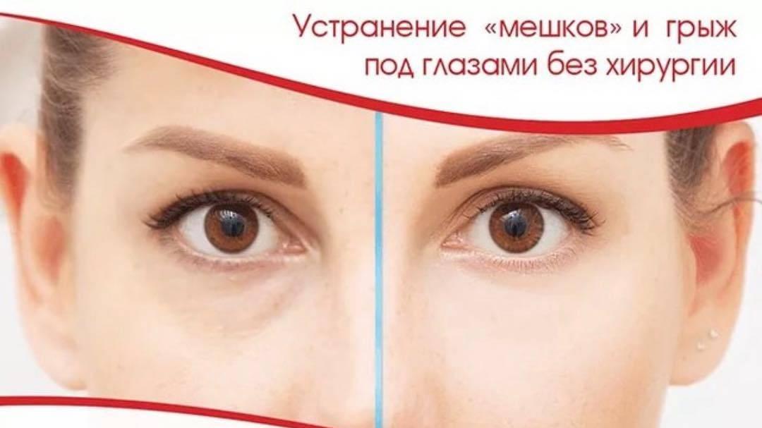 Дермахил от мешков под глазами: правила использования, отзывы oculistic.ru дермахил от мешков под глазами: правила использования, отзывы