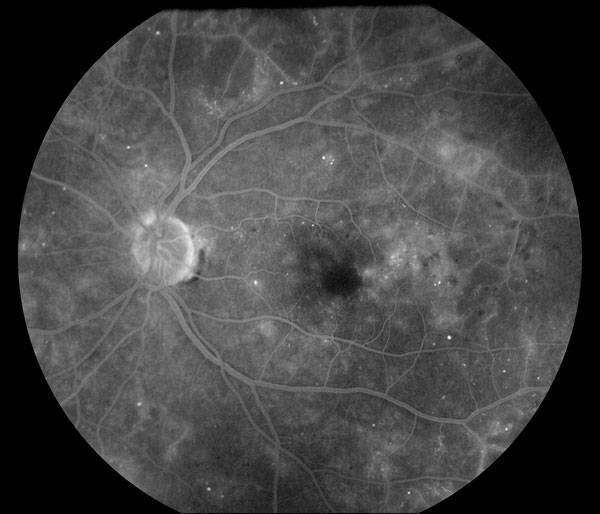 Флюоресцентная ангиография сетчатки глаза (фаг) – что это? - кабинет врача