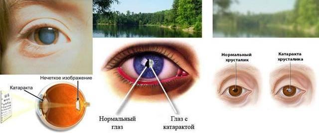 Стал плохо видеть один глаз — как исправить и как это называется