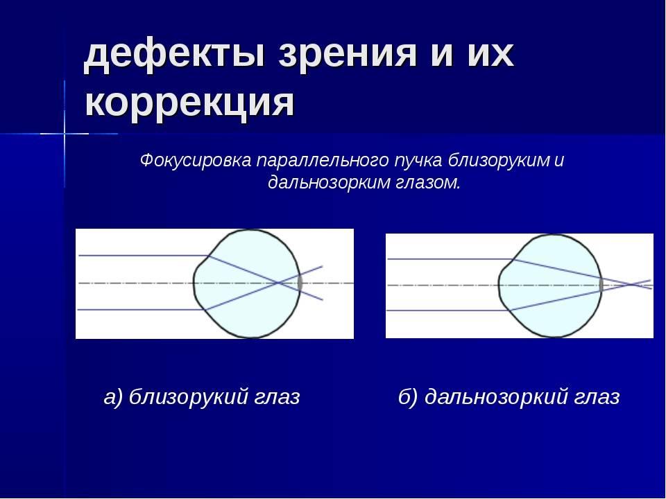 Нарушения зрения - люди с дефектами, виды проблем, классификация