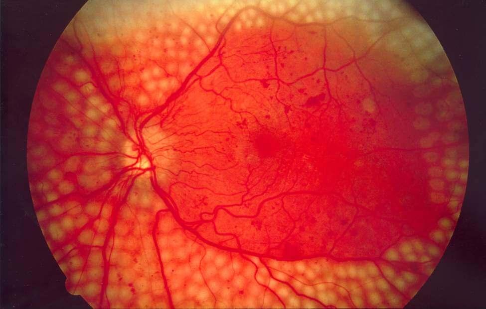 Что это такое макулопатия глаза: причины, виды, симптомы и лечение oculistic.ru что это такое макулопатия глаза: причины, виды, симптомы и лечение