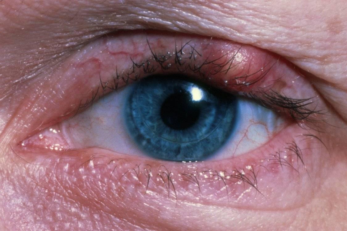 Лечение блефарита в домашних условиях