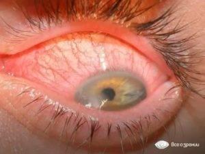 Выделения из глаз: причины, симптомы и лечение
