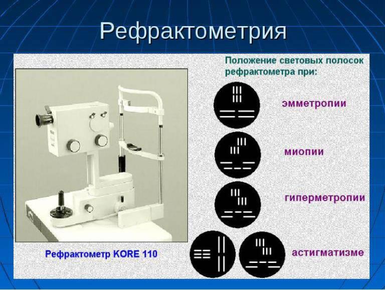 Рефрактометрия глаза: что такое, показатели