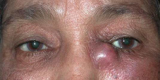 Почему слезятся глаза у пожилых, и как избавиться от проблемы