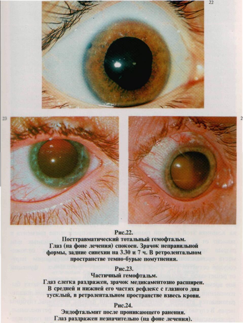 У меня гемофтальм глаза, это опасно?