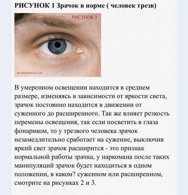Суженные зрачки : причины и лечение   компетентно о здоровье на ilive