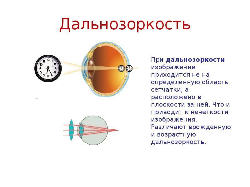 Гиперметропия ? информационный портал детское зрение