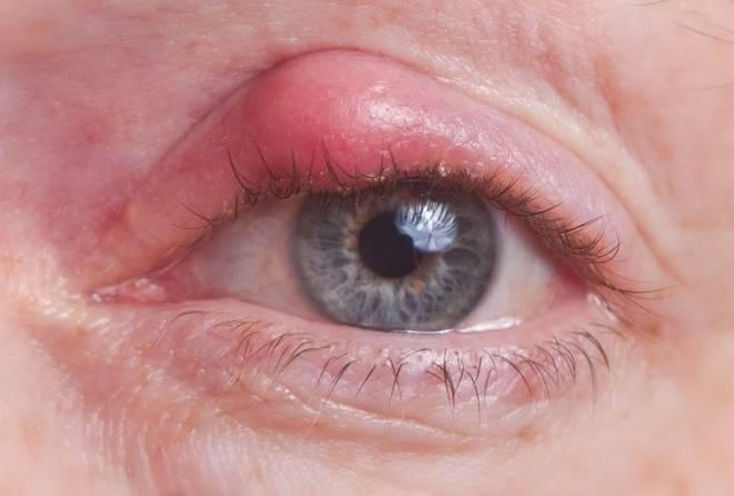 Киста на глазу: симптомы (фото), причины, что делать и как лечить у взрослого или ребенка, удаление, осложнения, профилактика