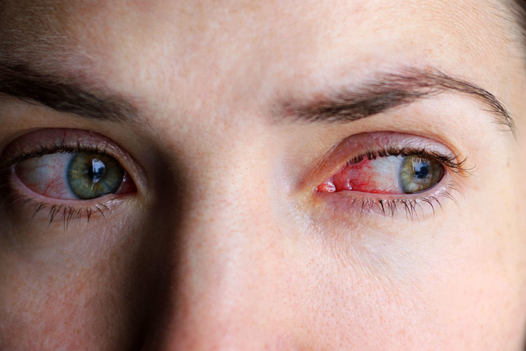 Красные глаза от компьютера что делать последствия - медицинский справочник