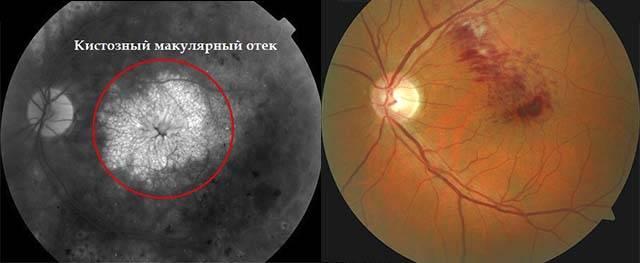 Лечение макулярного отека сетчатки глаза - все способы в зависимости от механизма образования болезни, ее причин и симптомов