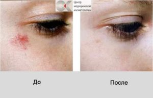Что можно сделать, если лопнул сосуд под глазом и образовался синяк?