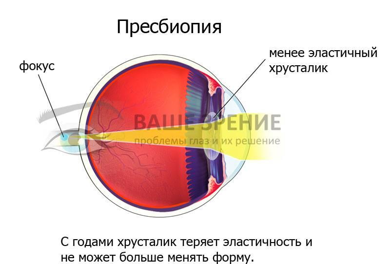 Особенности возрастной дальнозоркости | про болезни глаз