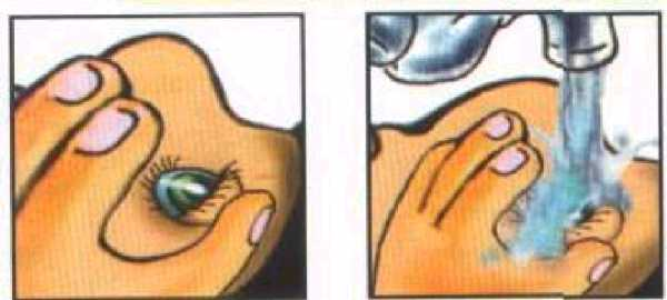 Оказываем первую эффективную помощь при ожоге глаз маслом