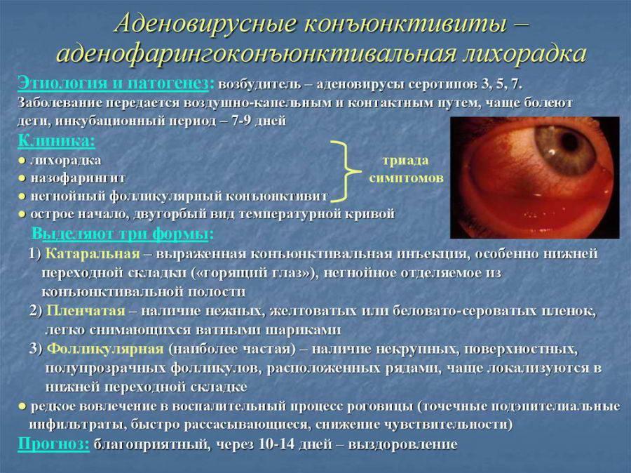 Вирусный кератит: симптомы и лечение, причины возникновения и профилактика болезни