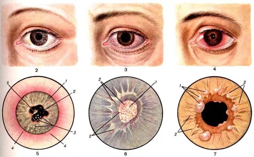 Воспаление радужной оболочки глаза: как называется по научному, причины, симптомы, лечение ирита