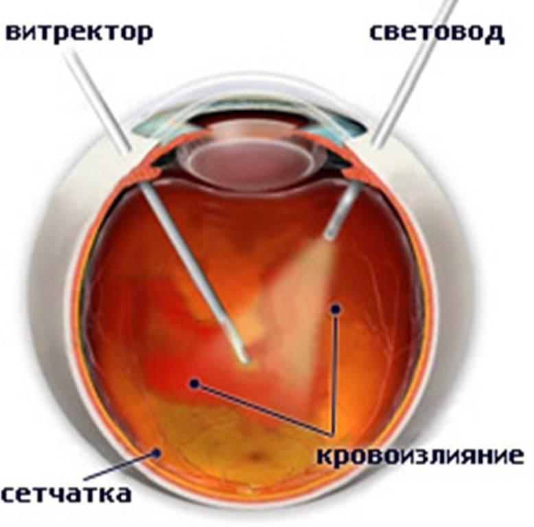 """Витрэктомия глаза (микроинвазивная операция) - доступные цены, отзывы пациентов после лечения - moscoweyes.ru - сайт офтальмологического центра """"мгк-диагностик"""""""