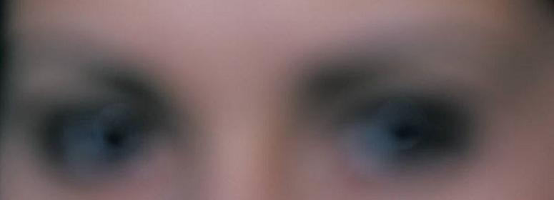 Пелена в глазах (белая, черная, мушки) - причины появления и эффективное лечение