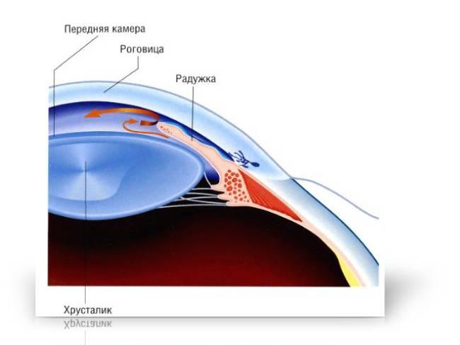 Особенности возникновения и лечения открытоугольной глаукомы
