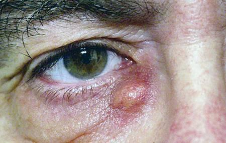 Дакриоцистит у взрослых: симптомы и лечение