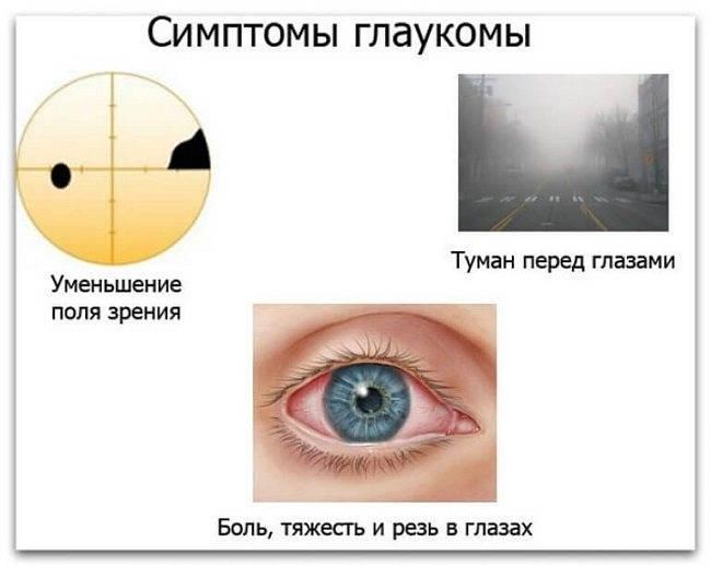 Признаки глаукомы на разных стадиях развития заболевания