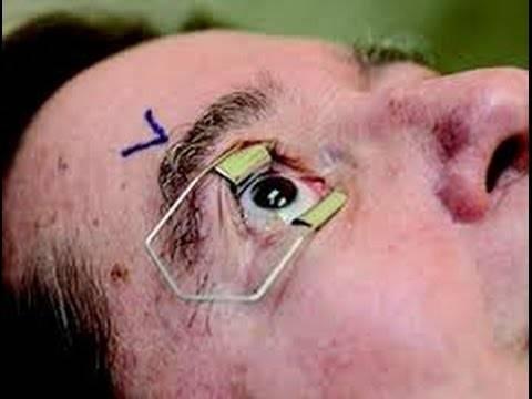 Инъекция в глаз как называется