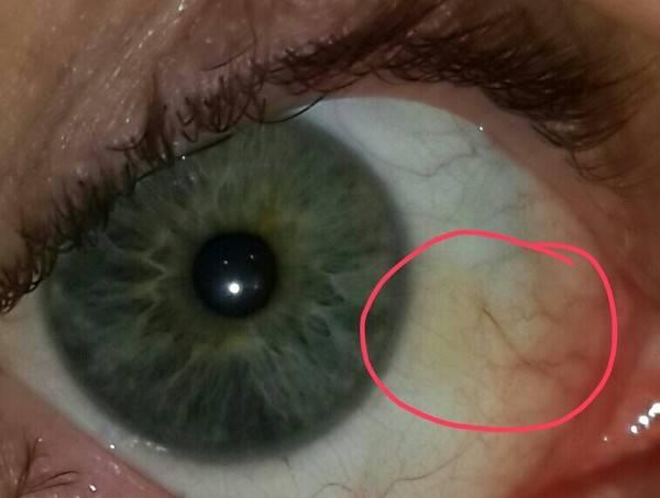 Что делать если стружка, соринка, ресница, окалина или иное инородное тело попало в глаз