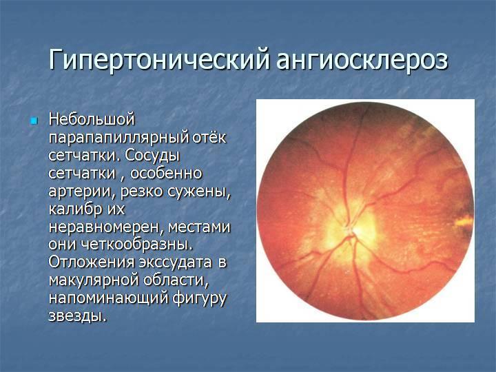 О чем говорит сужение сосудов глаз?