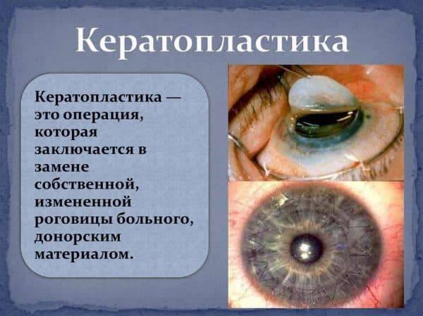 Эрозия глаза: чем лечить сетчатку глаза при травматической эрозии