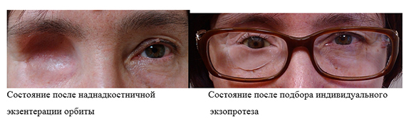 Энуклеация глаза: суть операции, противопоказания, осложнения