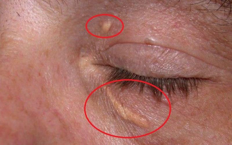Желтые пятна на веках глаз - что это, причины, лечение
