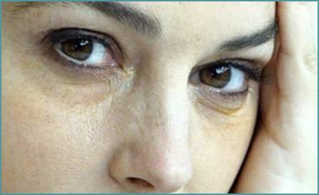 Желтые круги под глазами причины у женщин. отчего появляется жёлтая кожа вокруг глаз