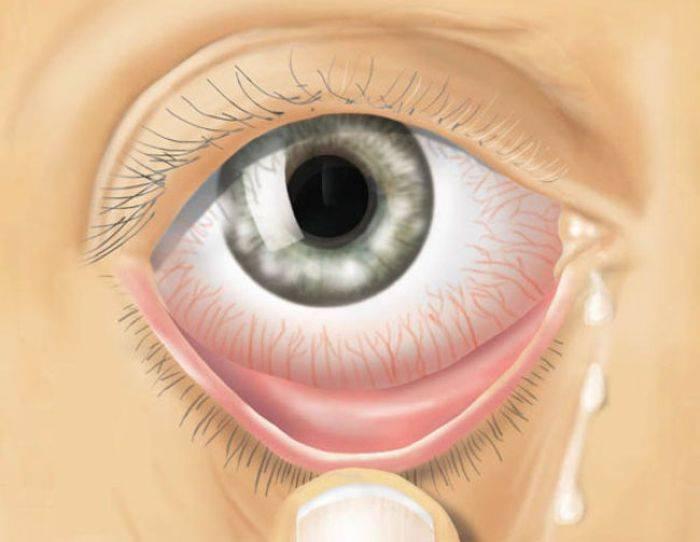 """Выделения из глаз: гнойные, коричневые, желтые и белые. причины и лечение на сайте """"московская офтальмология"""""""