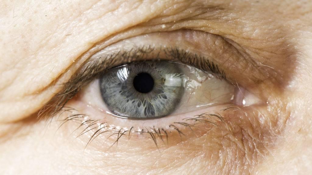 Глаукома: причины, симптомы, лечение и профилактика