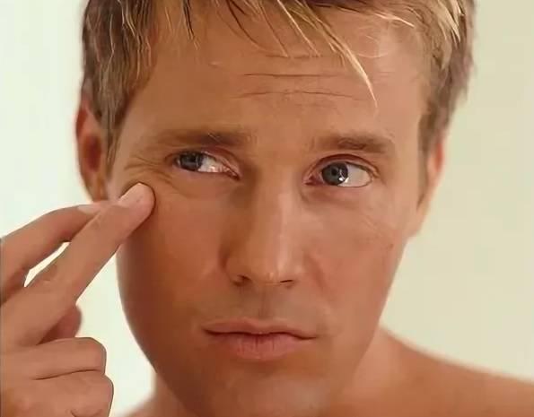 Мешки под глазами: причины и лечение у женщин и мужчин с помощью кремов, мазей и другими способами, отзывы