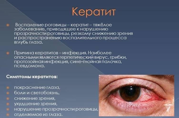 Ухудшение зрения: причины падения зрения у детей, резкое снижение зрения у взрослых, лечение  | азбука здоровья