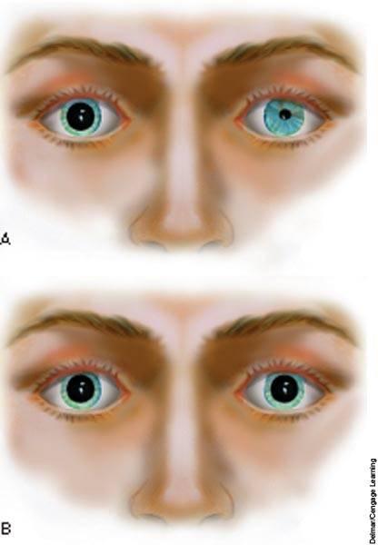 Анизокория: причины, при которых заболевание возникает, лечение у взрослых и детей